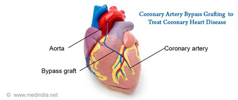 Coronary Heart Disease  Causes, Symptoms, Risk Factors. Little Girl Signs Of Stroke. Dopamine Signs Of Stroke. Pallet Signs Of Stroke. Hotel Bed Signs. Home Sweet Signs. Canada Parks Signs. Oven Signs Of Stroke. Childhood Diabetes Signs Of Stroke