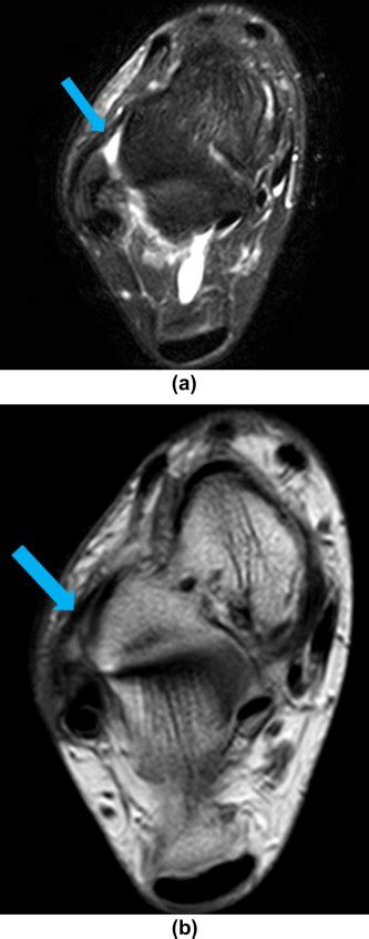 Accuracy of MRI findings in chronic lateral ankle ligament