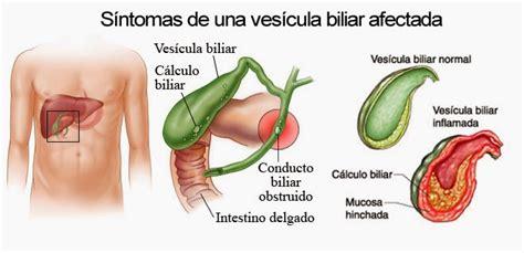 La prostata inflamada duele