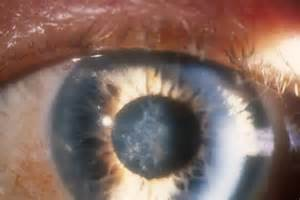 Glaucoma after Cataract Surgery - Cataract and Glaucoma Eye Specialist  Glaucoma Cataract