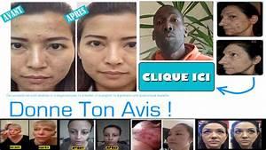 Start And Stop Avis : effederm avis youtube ~ Medecine-chirurgie-esthetiques.com Avis de Voitures