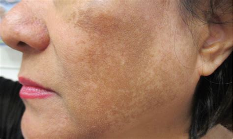 hyperpigmented patches on a woman s sun exposed face what