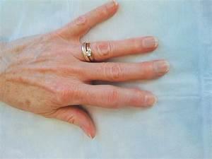 psoriasis rheumatica