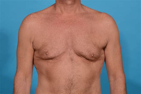 Central Physique Etching with Pectoral Augmentation in
