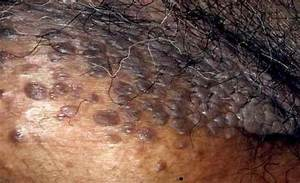 36 Best Images About Hpv  Genital Warts On Pinterest