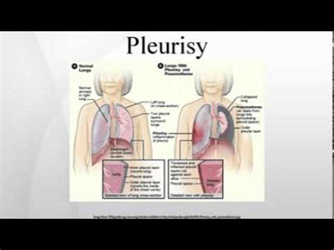 Pleurisy  Youtube. Cafe Italian Signs. Betrayed Signs Of Stroke. The Bible Signs. Magnet Signs Of Stroke. Dairy Farm Signs. Prodromal Signs. Clinical Signs. Tingling Signs