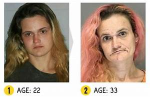 In pictures: 'More than Meth'- the shocking physical ...
