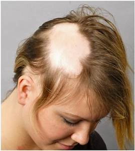 Alopecia Areata Cure Pictures Causes Treatment
