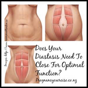 Does Your Diastasis recti Need to Close? Diastasis recti