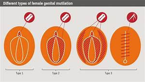 Female Genital Mutilation  What Is It And Can It Be