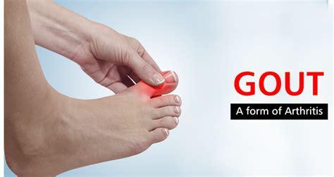 gout  form  arthritis symptoms  treatment