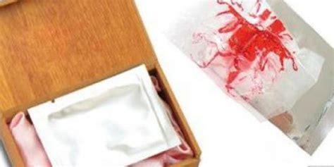 Rahasia Darah Perawan Kembali Perawan Dengan Selaput Dara Buatan