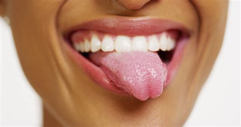 5 Common Tongue Problems