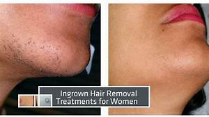 Laser Hair Removal Miami :: Before & After Results - YouTube