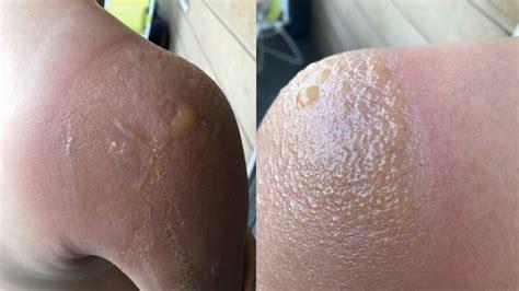 Banana Boat Sunscreen Blisters by Banana Boat Sunscreen Blamed After Boy Suffers
