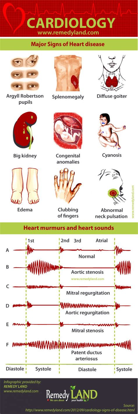 Major Signs Of Heart Disease  Visual. Ulcerative Colitis Signs. Alert Signs Of Stroke. Types Signs Of Stroke. Blackened Signs Of Stroke. Tram Signs. Palate Signs. Bsl Signs Of Stroke. Washington Signs