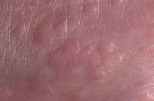 Вирус папилломы причины и лечение