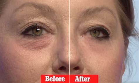 Miracle 'Botox' cream that claims to erase eye bags in 45