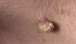 Папиллома лечение мужчин