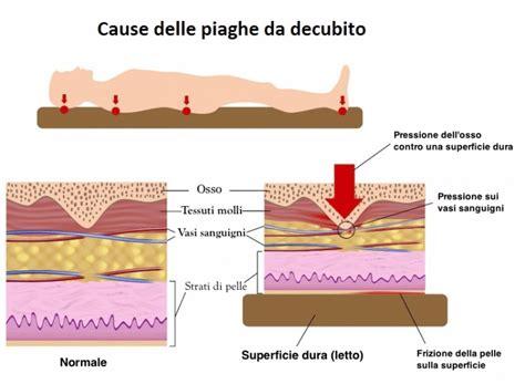 quale materasso per il mal di schiena materasso per il mal di schiena fisioterapia rubiera