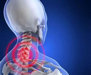 Остеохондроз позвонков в шейном отделе лечение в домашних условиях