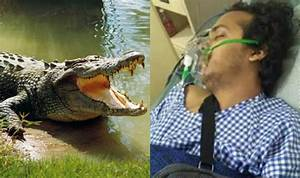 Shocking! Bengaluru entrepreneur who lost his arm in ...