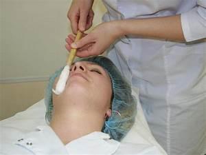 Удалить бородавки азотом челябинск