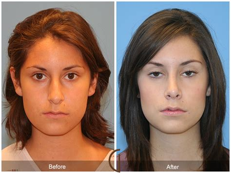 Before & After Rhinoplasty 25  Orange County Nose Job Surgeon. How To Stop Using Tobacco Best Trading Robot. The Days Of The Week In French. What Do Advertising Agencies Do. Cosmetology School South Carolina. Fashion Merchandising Certificate. Bonus Open Checking Account New Age Plumbing. Fire Engineering Degree Best Credit Card Rate. How To Adopt A Child In Texas