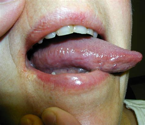 Oral Maxillo Facial Surgery Burning Mouth Syndrome