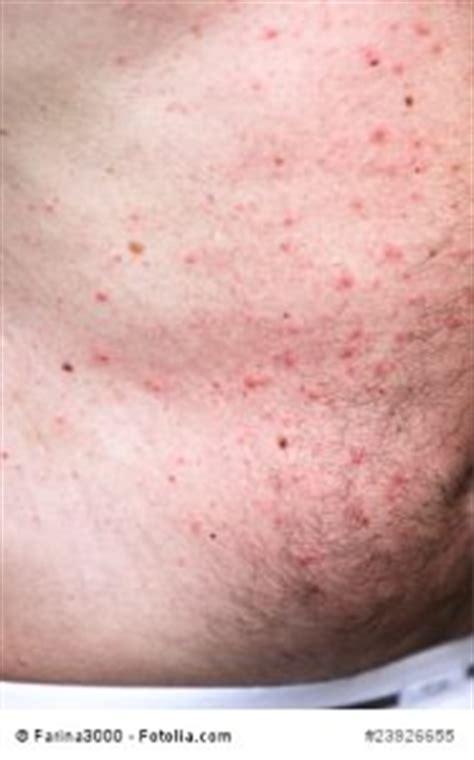 symptome leberentzündung