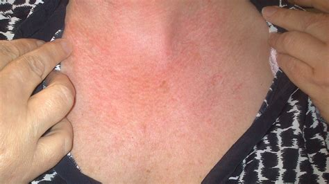 I Have A Very Itchy Rash On My Neck And Chest, Im 55 And Going