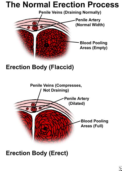 Causes Of Erectile Dysfunction Causes, Symptoms, Treatment. Hurricane Windows Tampa Makeup Schools Online. City Of Durham Yard Waste Massage Hazleton Pa. The American University In London. Epinephrine Adrenal Medulla What Is Dialer. Princevalle Pet Hospital Lee Iacocca Chrysler. How Expensive Is Cord Blood Banking. Wrinkles Around Eyes When Smiling. Disability Insurance Information