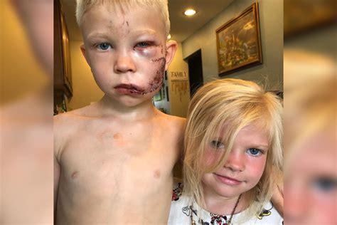 year  boy risks life  save sister  brutal dog