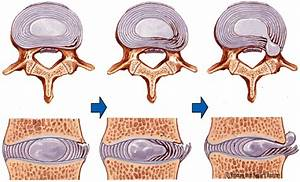 WHAT IS IT AND HOW TO CURE THE HERNIATED DISC