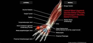 Wrist Lateralulnerligamentinjuries Large