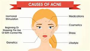 Causes Of Acne  Why Do You Get It  U0026 How You Can Prevent It