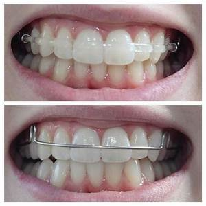 41 best images about Retainer Designs on Pinterest | Labs ...