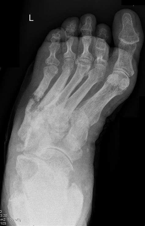 chronic osteomyelitis   foot image radiopaediaorg