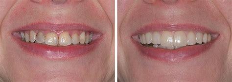 aesthetisch funktioneller zahnersatz zahnarzt koeln maarweg