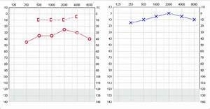 Conductive Hearing Loss Conductive Loss Consistent With