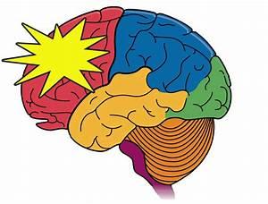 Epilepsy Types