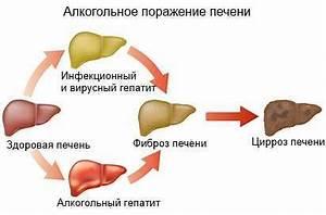 Препараты для печени при гепатите