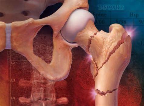 older women     atkins diet risk osteoporosis