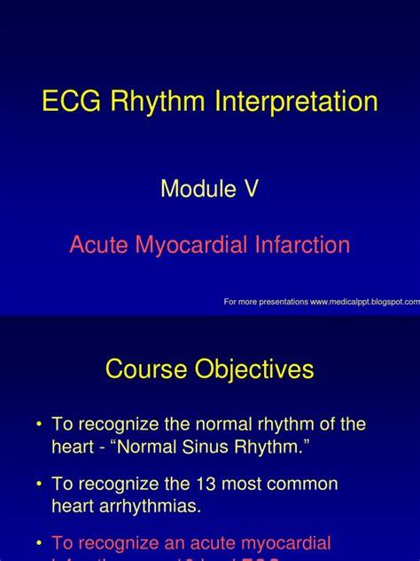 Myocarditis is an inflammatory lesion of the cardiac muscle. ECG-Acute Myocardial Infarction   Electrocardiography   Cardiovascular Physiology
