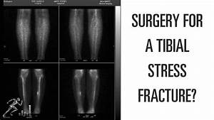 Can A Tibial Stress Fracture Heal Without Surgery