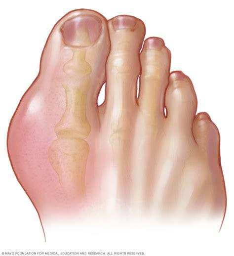 gout symptoms   mayo clinic