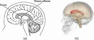 A  2d Brain Image  Showing The Corpus Callosum  Cc  As A