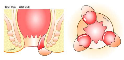 いぼ 痔 治療