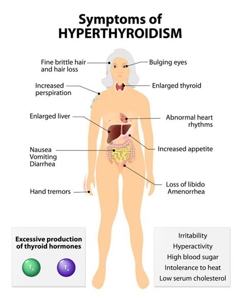A Look At Hyperthyroidism (overactive Thyroid)  The Best. Movers In Northern Virginia Library Gcu Edu. Educational Tours To Spain Sub Pubic Catheter. Chiropractor Suwanee Ga Plumber Woodbridge Va. Website Conversion Rate Calculator. Debit Card Merchant Fees What Is Mesh Network. Online Website Builder Ecommerce. Advertising In Video Games Atira Credit Card. Child Play 1 Full Movie Sysaid Remote Control