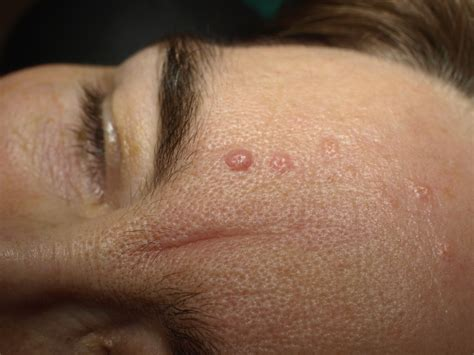 Fileseborrheic Keratosis